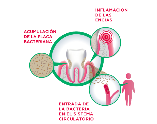 Infographic about the  link between gum and body health