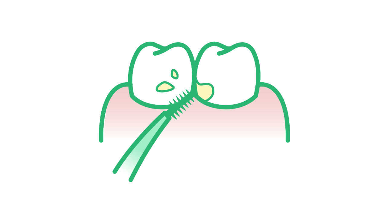 Illustration of an interdental pick removing plaque between teeth