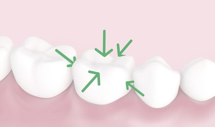5 tooth surfaces