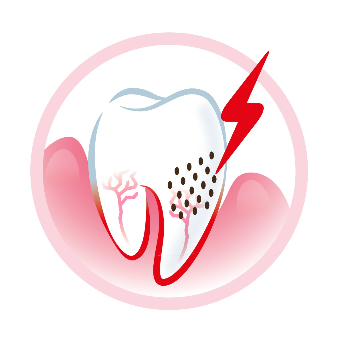 Exposed dentin causes teeth sensitivity