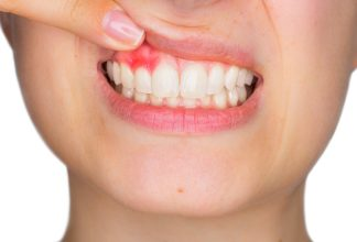 Sunstar GUM - The Difference Between Sensitive Gums, Gingivitis and Gum Disease